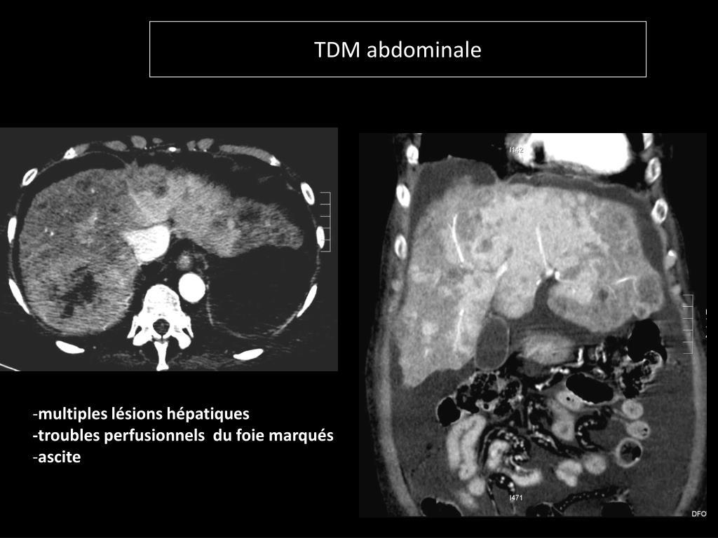 TDM abdominale