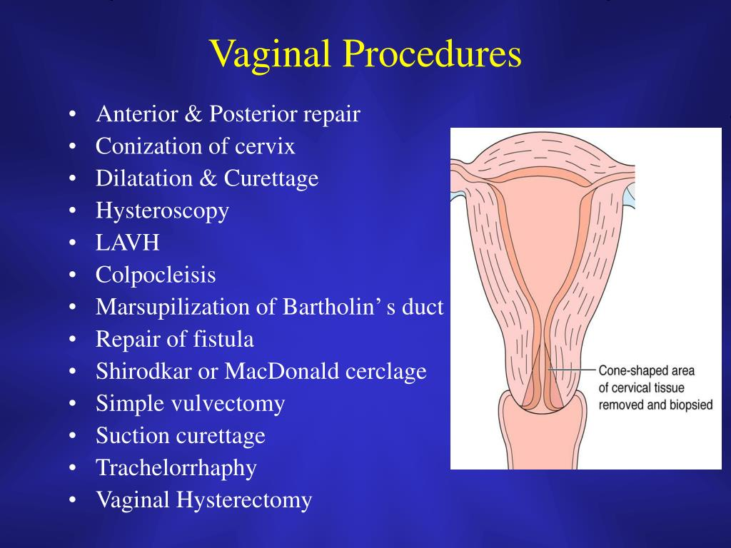 Vaginal Procedures