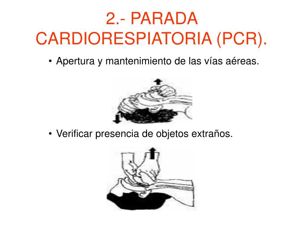 2.- PARADA CARDIORESPIATORIA (PCR).