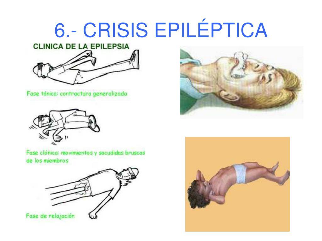 6.- CRISIS EPILÉPTICA