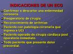 indicaciones de un ecg