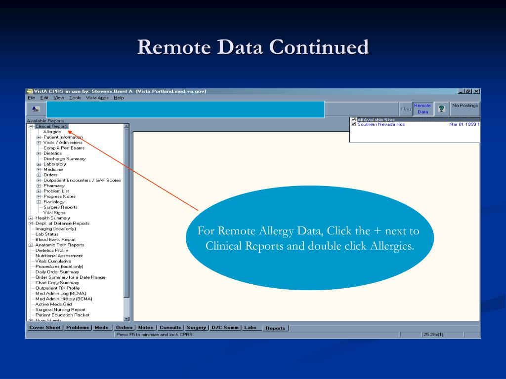 Remote Data Continued