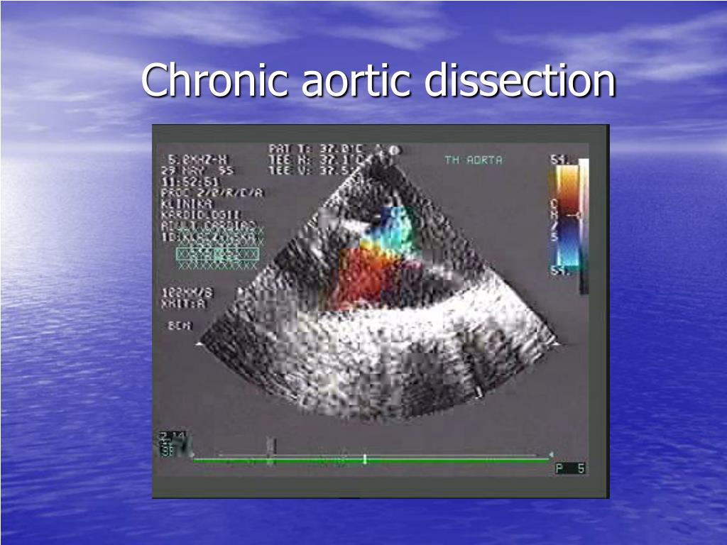 Chronic aortic dissection
