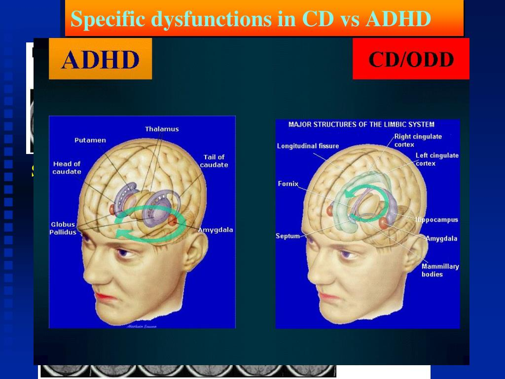 Specific dysfunctions in CD vs ADHD