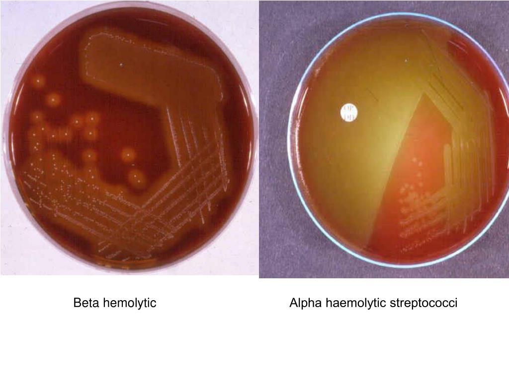Beta hemolytic