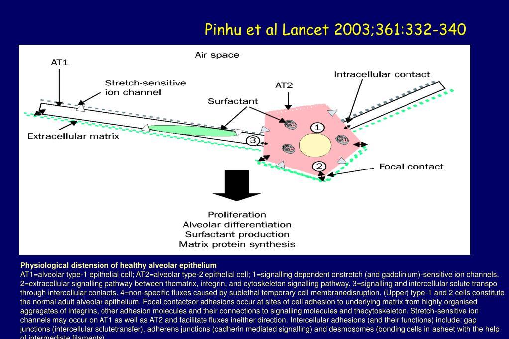Pinhu et al Lancet 2003;361:332-340