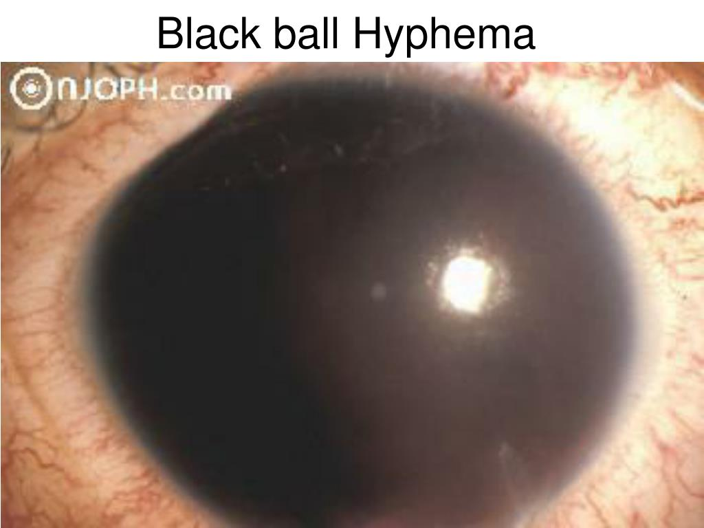 Black ball Hyphema