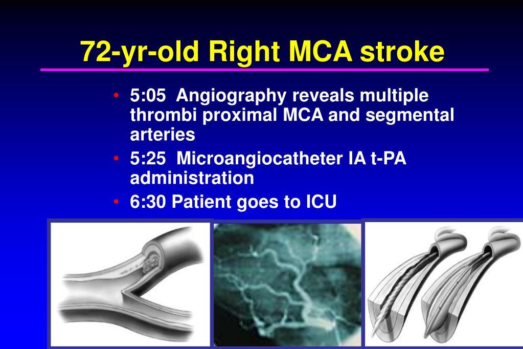 5:05  Angiography reveals multiple thrombi proximal MCA and segmental arteries