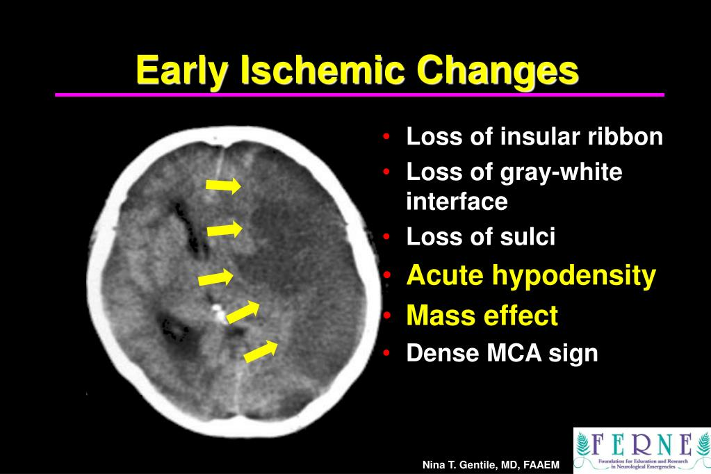Early Ischemic Changes