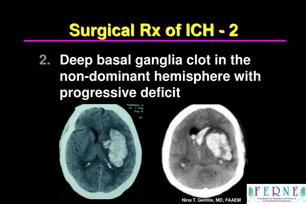 Surgical Rx of ICH - 2