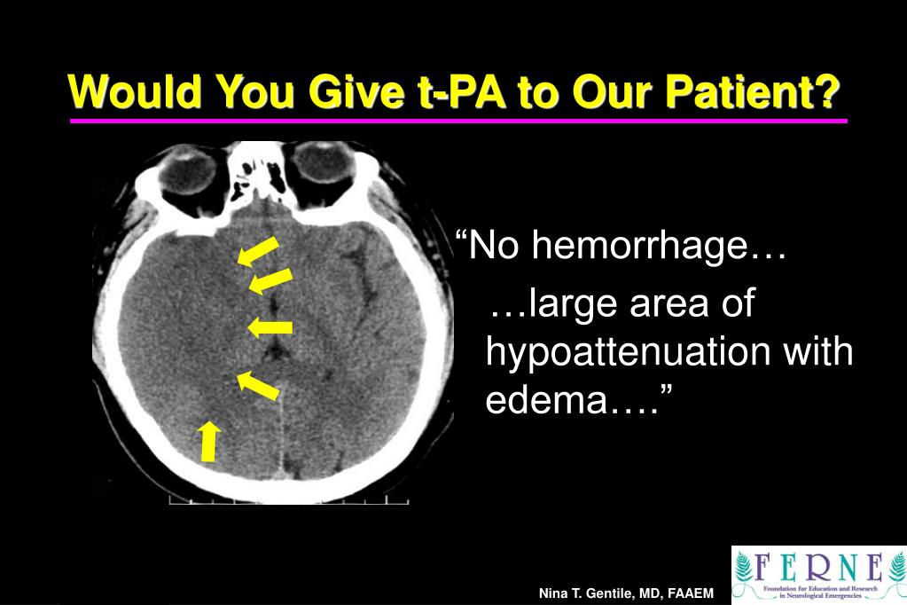 Would You Give t-PA to Our Patient?