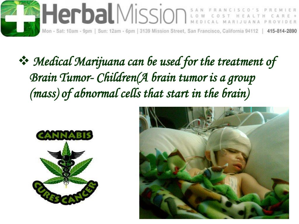 Medical Marijuana can be used for the treatment of  Brain Tumor- Children(A brain tumor is a group (mass) of abnormal cells that start in the brain)