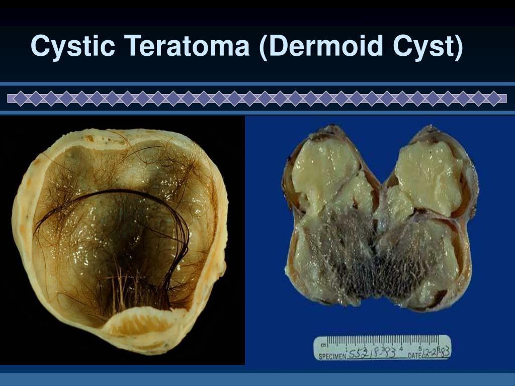 Cystic Teratoma (Dermoid Cyst)