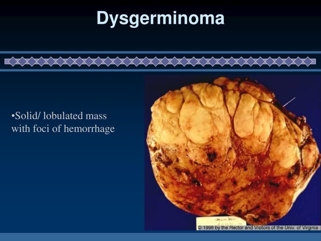Dysgerminoma