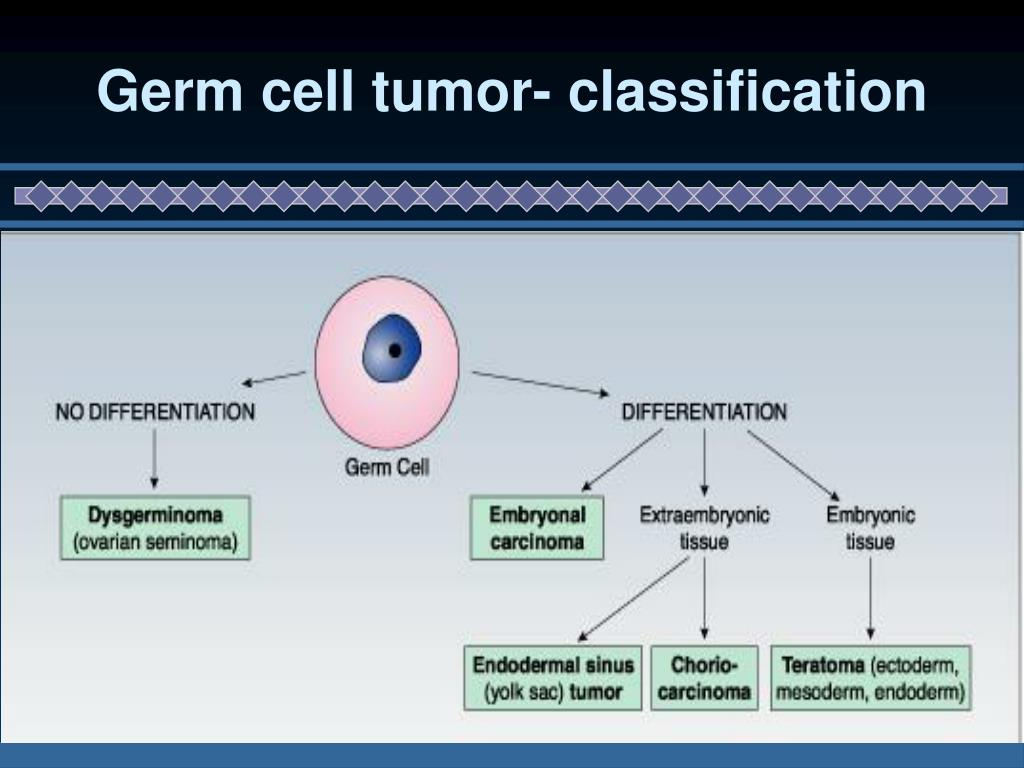 Germ cell tumor- classification