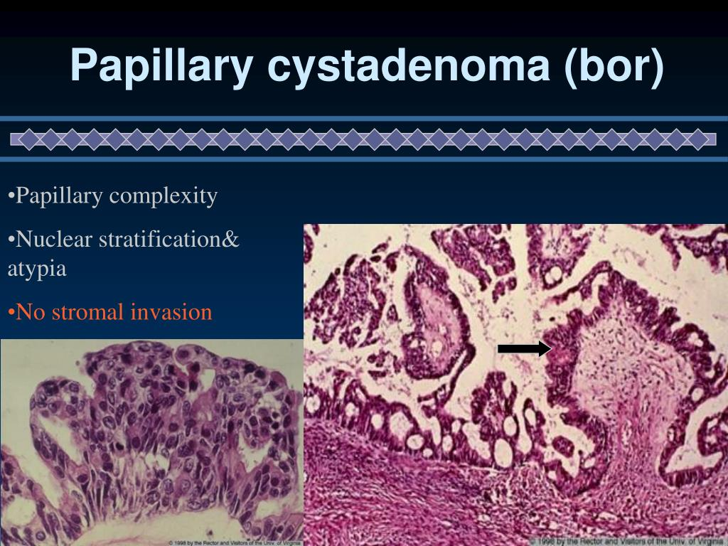 Papillary cystadenoma (bor)