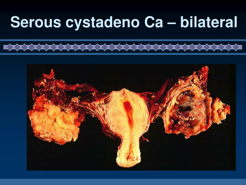 Serous cystadeno Ca – bilateral