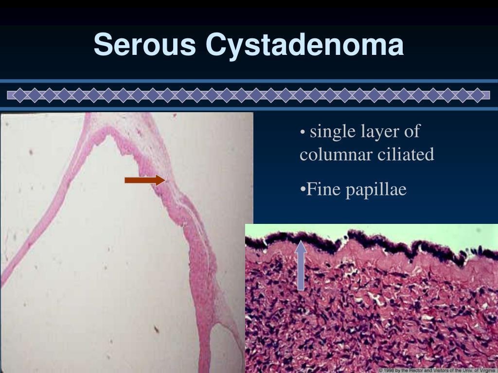 Serous Cystadenoma