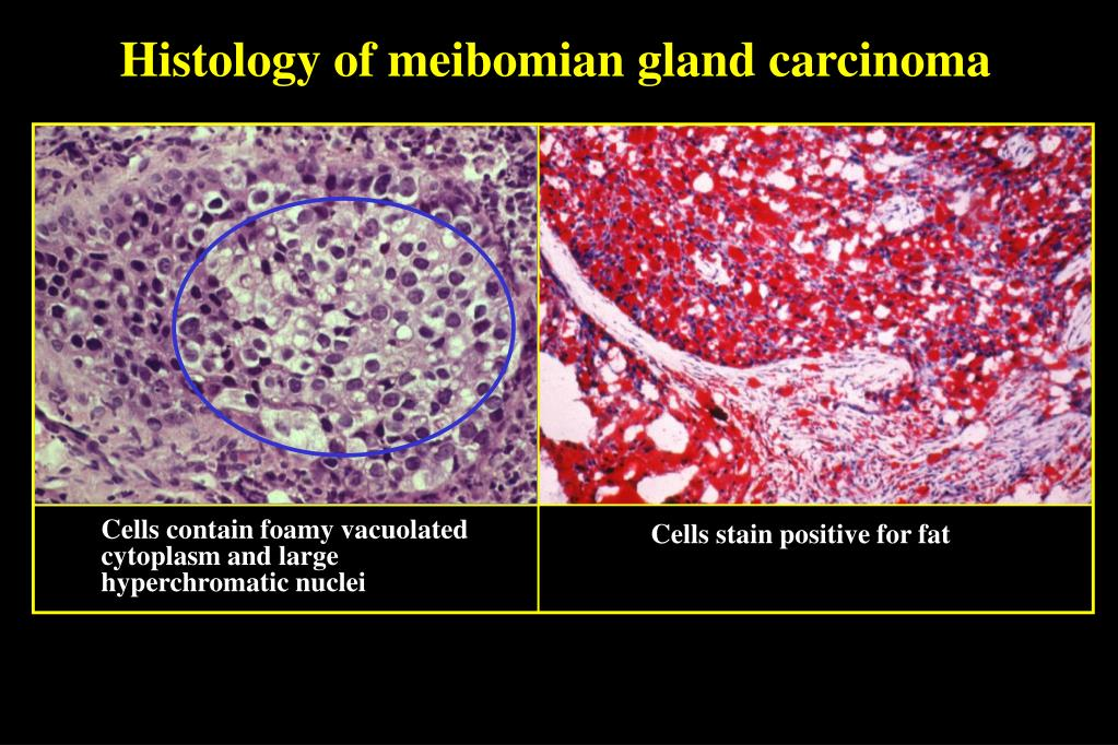 Histology of meibomian gland carcinoma