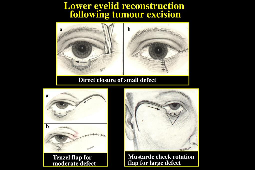 Lower eyelid reconstruction