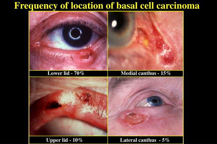 Frequency of location of basal cell carcinoma