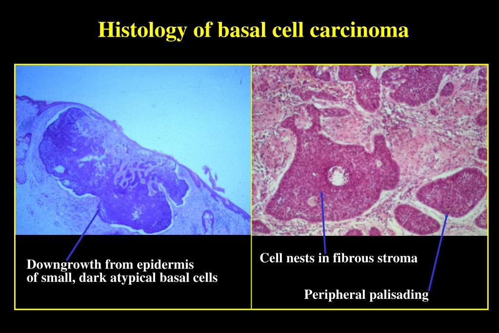 Histology of basal cell carcinoma
