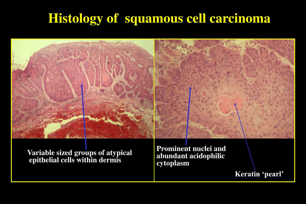 Histology of  squamous cell carcinoma