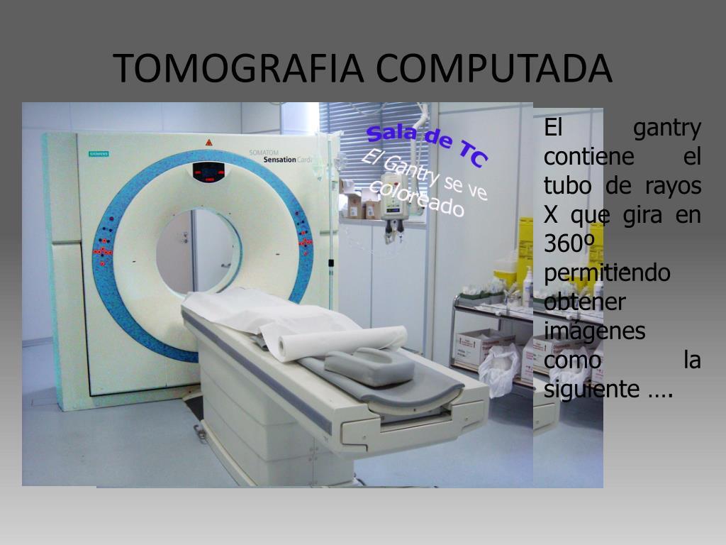 TOMOGRAFIA COMPUTADA
