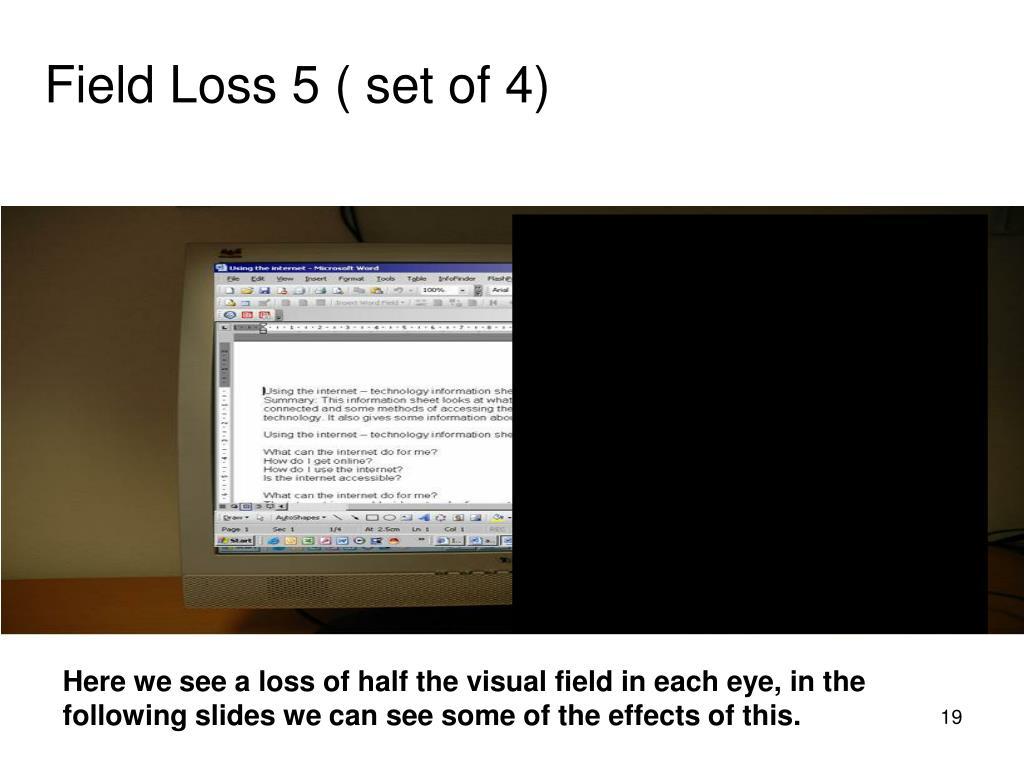 Field Loss 5 ( set of 4)