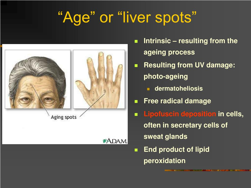 """""""Age"""" or """"liver spots"""""""