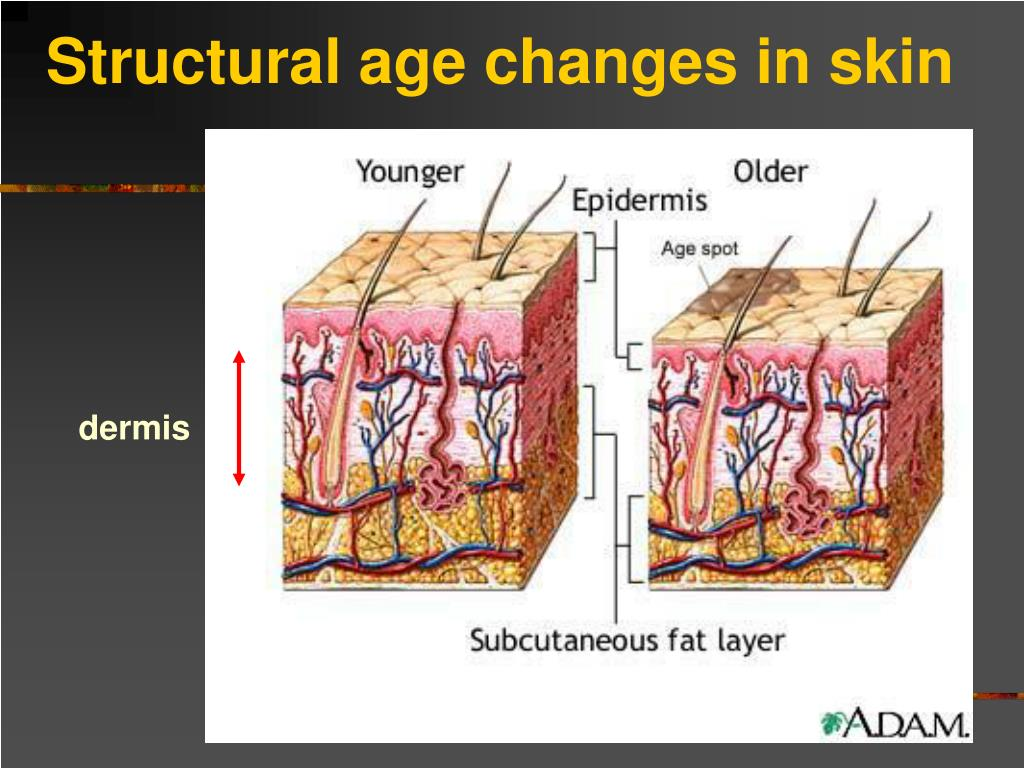 Structural age changes in skin