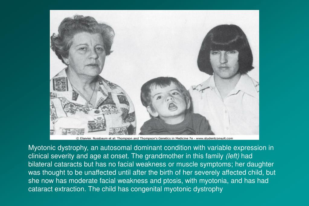 Myotonic dystrophy, an autosomal dominant condition with variable expression in clinical severity and age at onset. The grandmother in this family