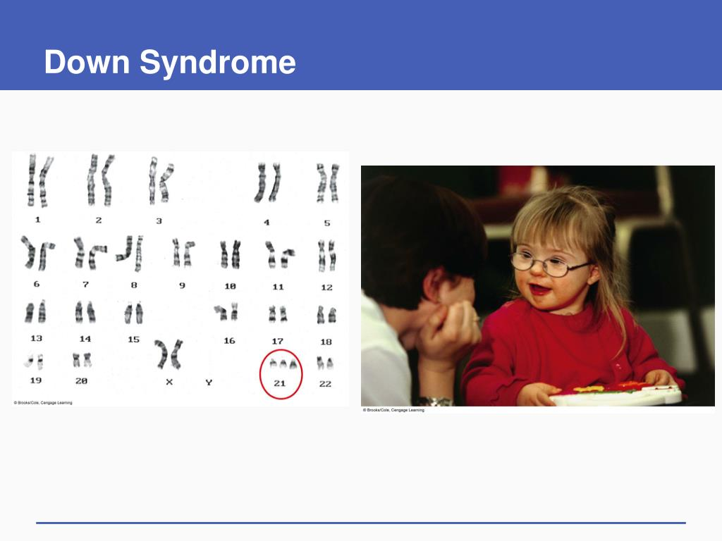 Down Syndrome
