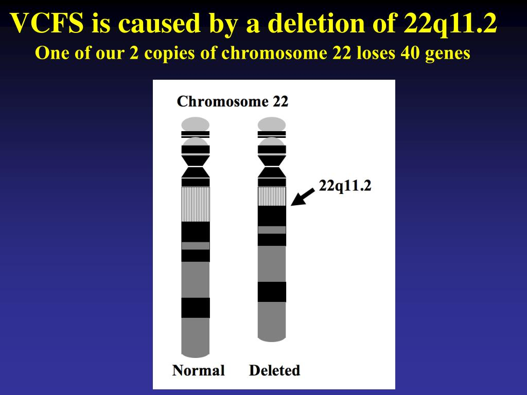 VCFS is caused by a deletion of 22q11.2