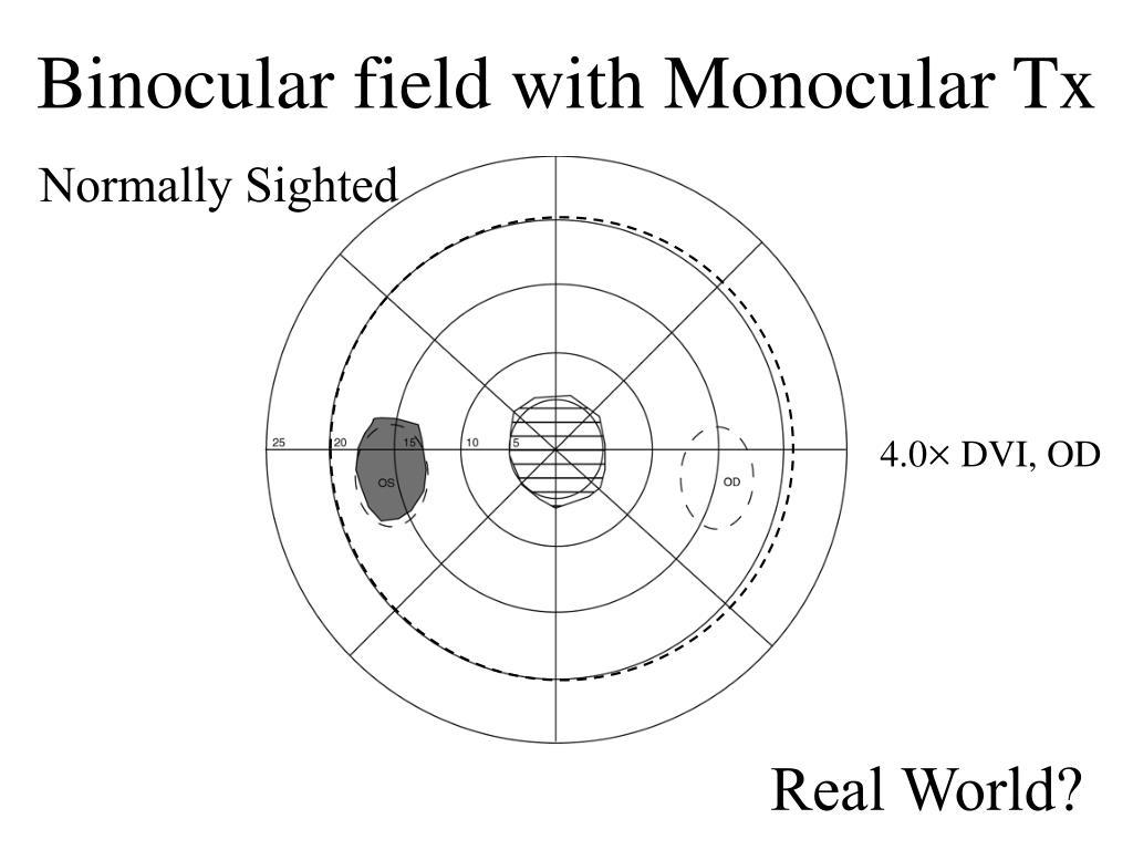 Binocular field with Monocular Tx