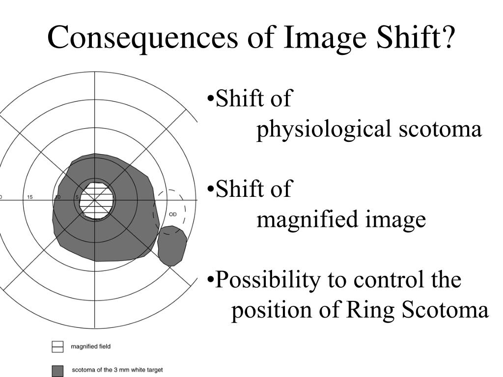 Consequences of Image Shift?