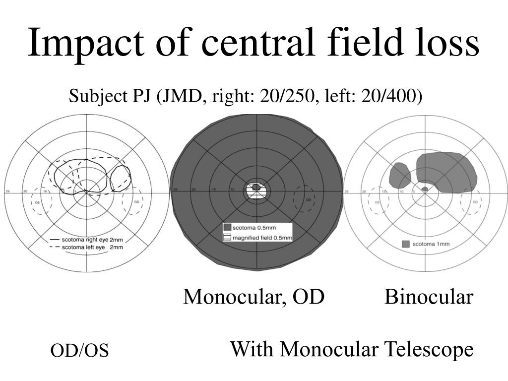 Impact of central field loss