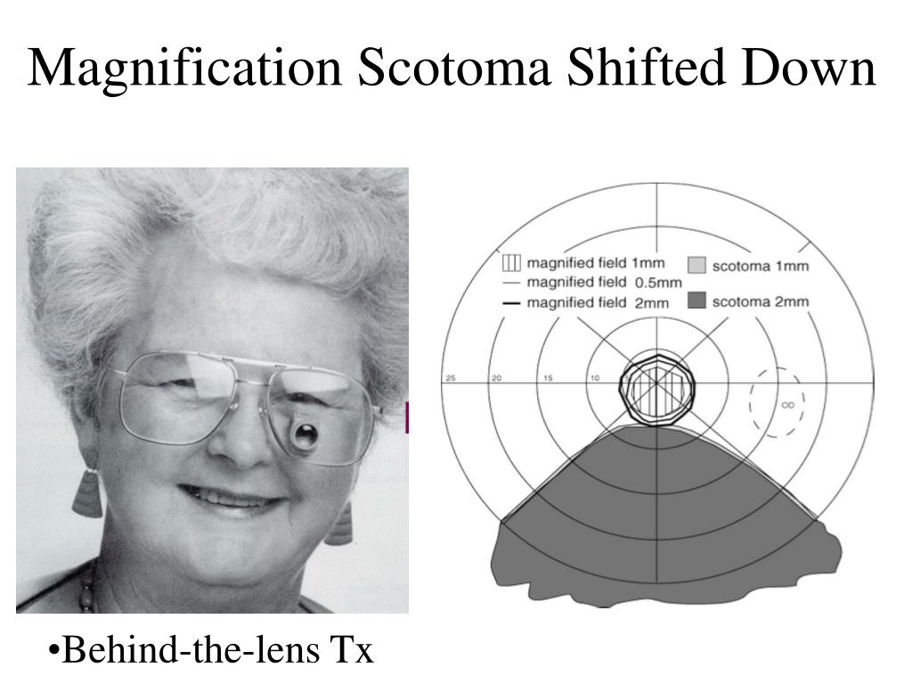 Magnification Scotoma Shifted Down