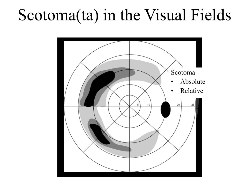 Scotoma(ta) in the Visual Fields