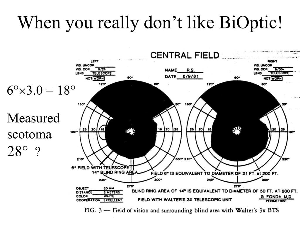 When you really don't like BiOptic!