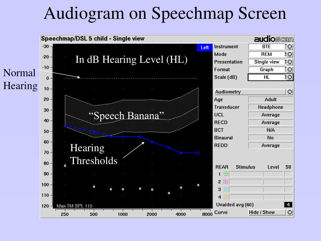 Audiogram on Speechmap Screen