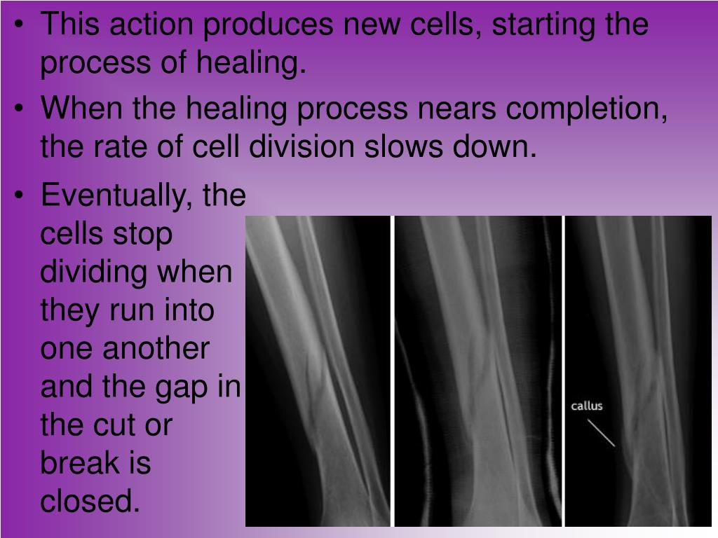 This action produces new cells, starting the process of healing.