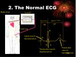 2 the normal ecg