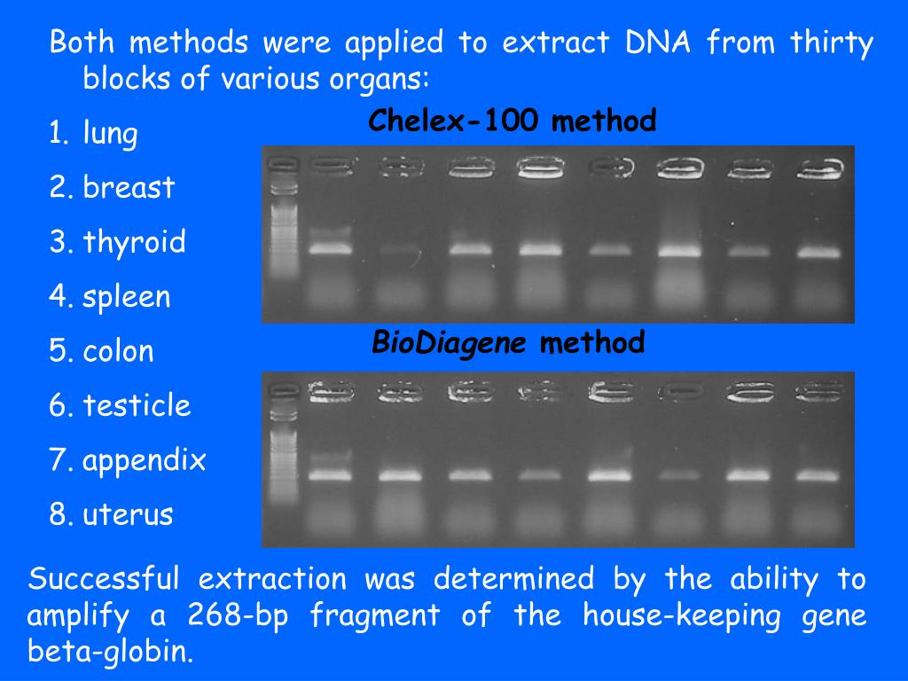 Both methods were applied to extract DNA from thirty blocks of various organs: