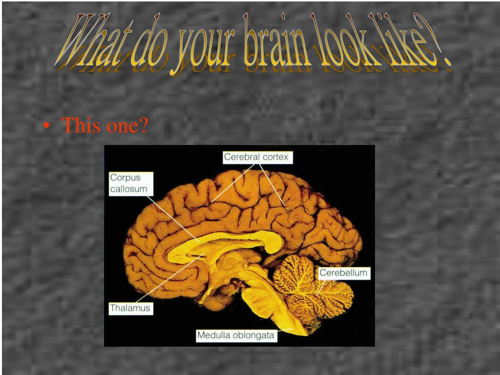 What do your brain look like?