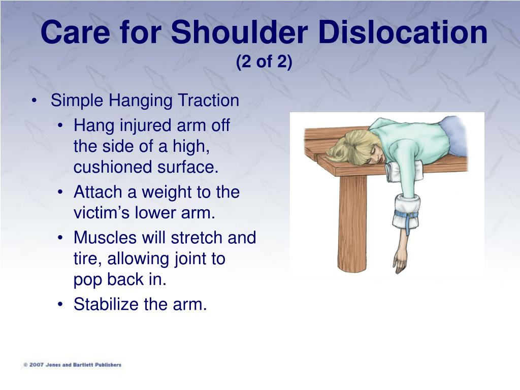 Care for Shoulder Dislocation