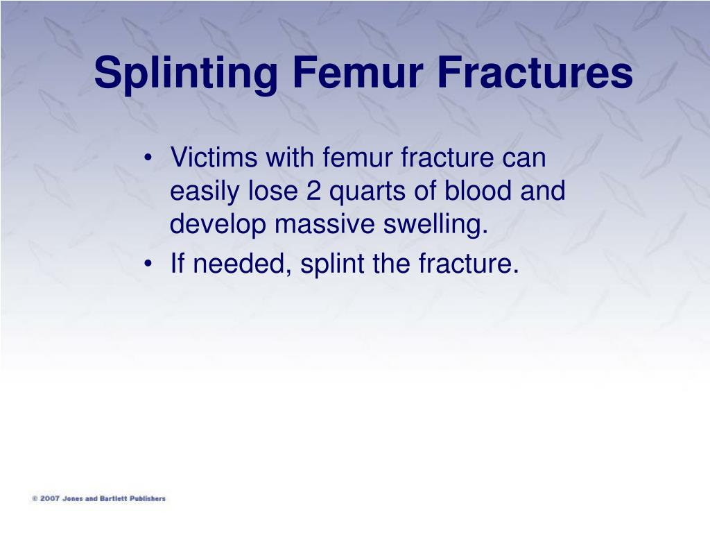 Victims with femur fracture can easily lose 2 quarts of blood and develop massive swelling.