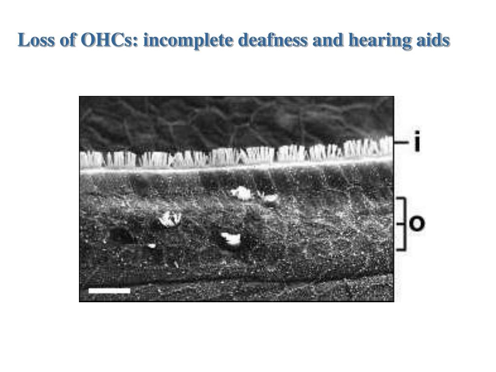 Loss of OHCs: incomplete deafness and hearing aids