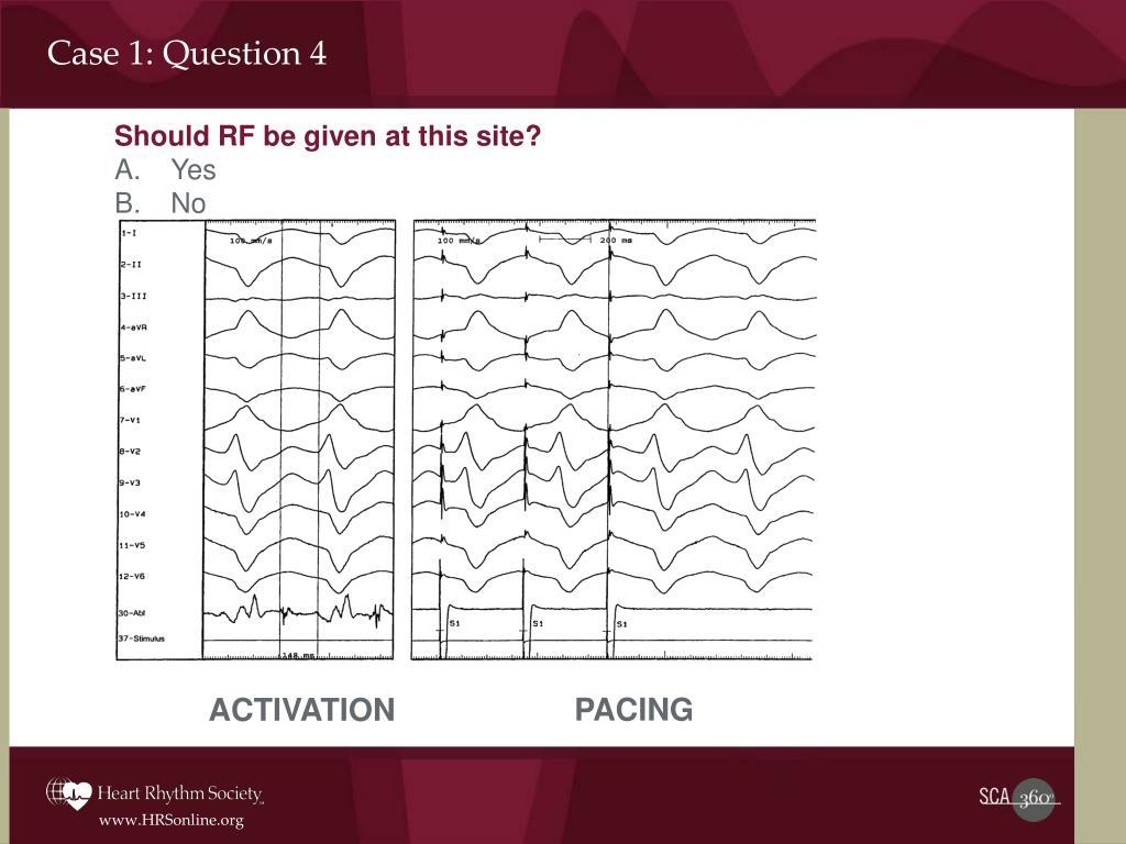 Case 1: Question 4