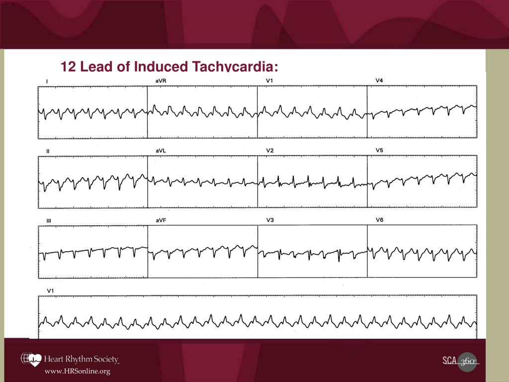 12 Lead of Induced Tachycardia: